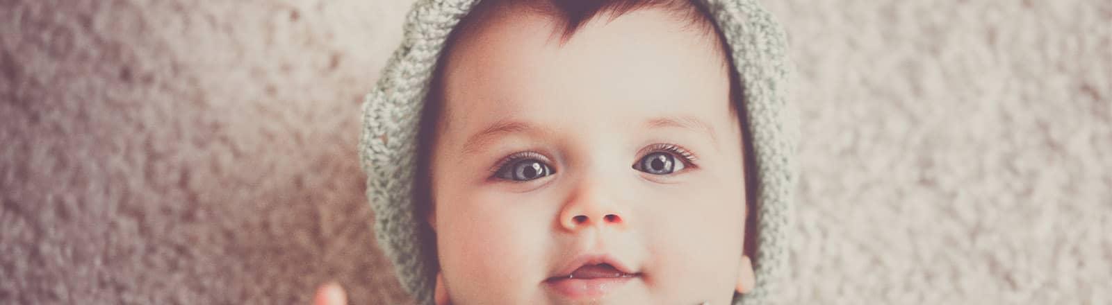 deformidades craneales fisioterapia del bebe
